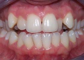 Case 1 after