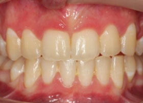 Case 5 before