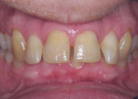 Case 6 after