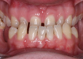 Case 4 after